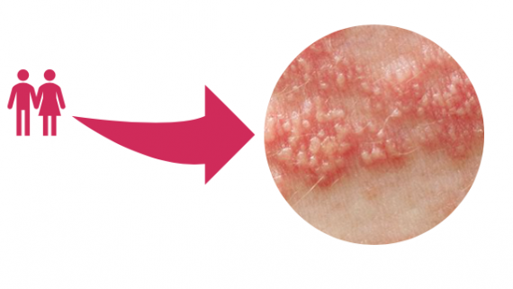 Do you have a Herpes? It helps treat cold sores and genital